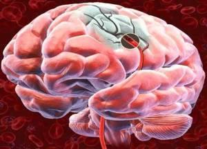 arteria cerebral ocluida
