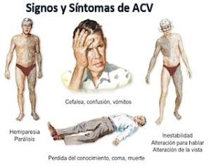 Síntomas y signos de un accidente cerebrovascular