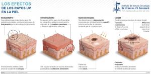Transformación de la piel como consecuencia de los rayos solares
