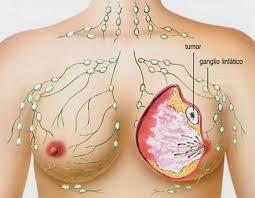 Patofisiología de glándulas mamarias