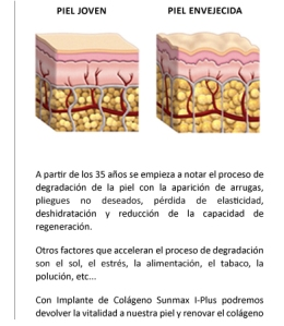 Comparación del proceso de envejecimiento por los rayos solares