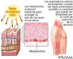 Efectos directos del sol sobre la piel