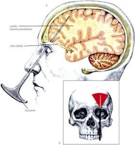 Sinapsis, red neuronal y lobotomía